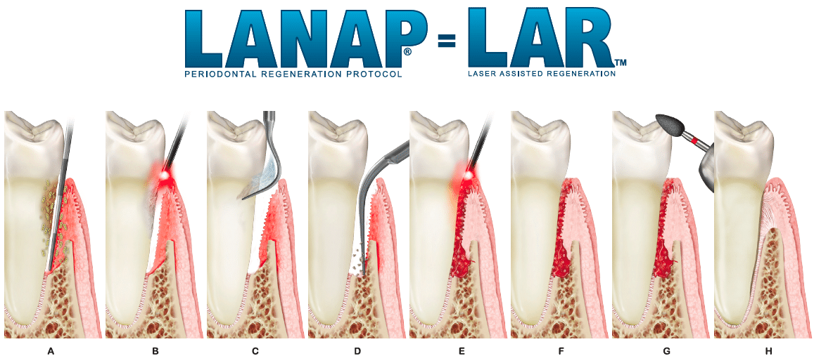 Lanap Periodontal Diseaese Treatment