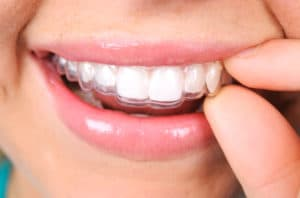 A close up image of a woman's smiling and removing slx clear aligners