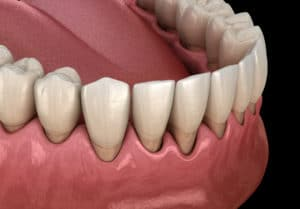 Gum recession process. Medically accurate 3D illustration
