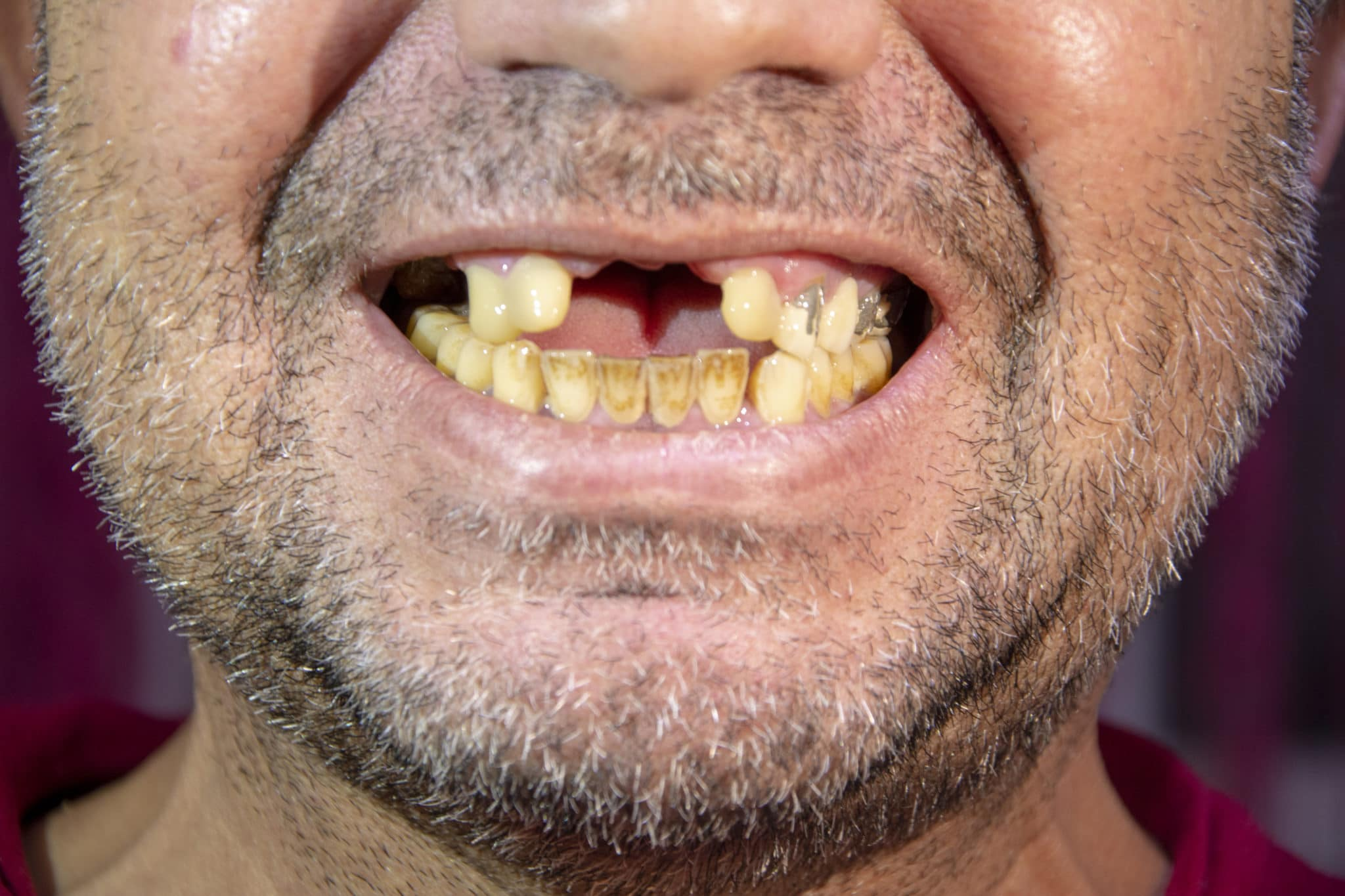 Close-up of toothless man laughing with yellowed teeth